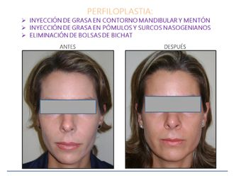 Cirugía facial-554129