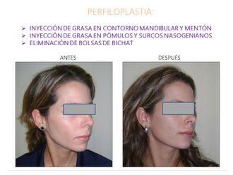 Cirugía facial-554130