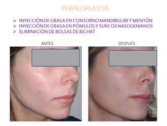 Cirugía facial-554131