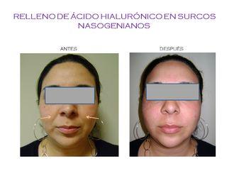 Ácido hialurónico-554132