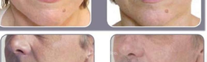 Antes y despues de relleno de acido hialuronico