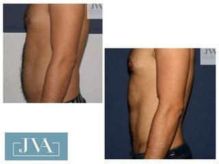 Lipo HD paciente masculino(espalda, flancos, abdomen y pectorales)