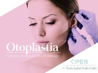 Otoplastía