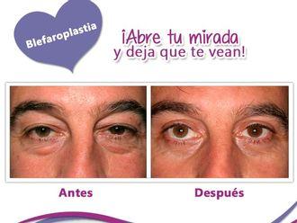 Blefaroplastia-605427