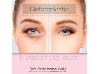 Blefaroplastia - 638415