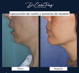 Mentoplastia - Dr. Carlos Pong
