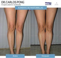 Aumento de pantorrillas - Dr. Carlos Pong