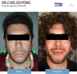 Bolsas de bichat - Dr. Carlos Pong