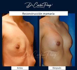 Reconstrucción mamaria - Dr. Carlos Pong