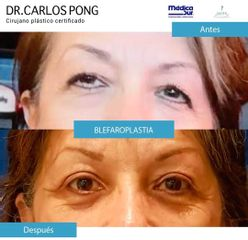 Blefaroplastia - Dr. Carlos Pong