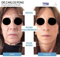 Bótox - Dr. Carlos Pong