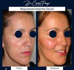 Rejuvenecimiento facial - Dr. Carlos Pong