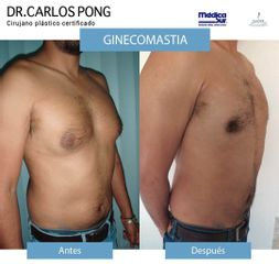 Ginecomastia - Dr. Carlos Pon