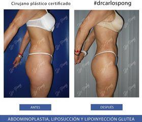 Liposucción - Dr. Carlos Pong