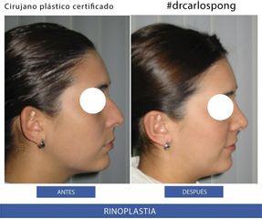 Rinoplastia - Dr. Carlos Pong