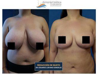 Reducción de mamas - 634644