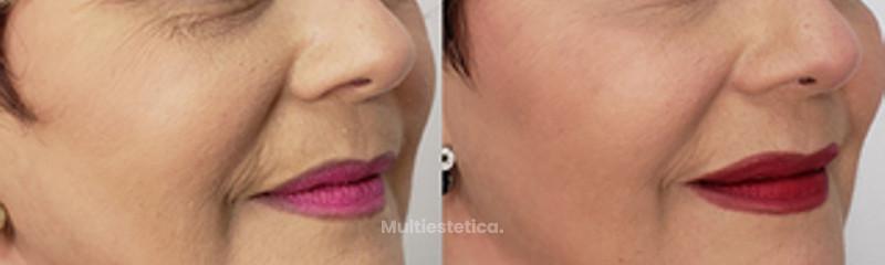 Rellenos Faciales y Botox