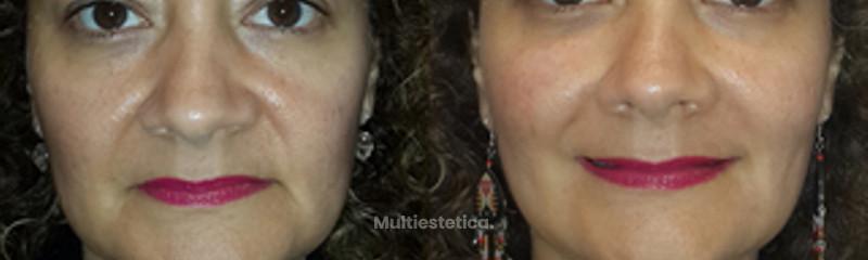 Rejuvenecimiento Facial sin cirugía (botox, relleno y Fotorejuvenecimiento con luz pulsada intensa)