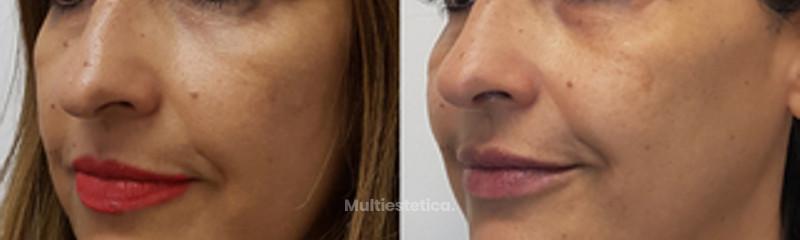 Rejuvenecimiento Facial sin cirugía (botox, relleno, dermapen e IPL.)