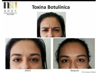 Bótox-630687