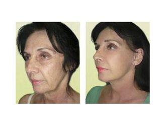 Rejuvenecimiento facial-495359