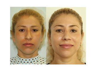 Rinoplastia a 1 año de operada