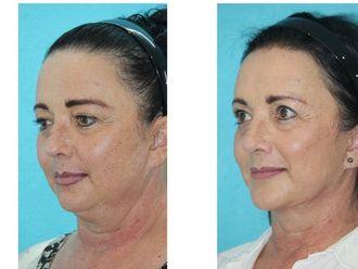 Cirugía de papada-630598