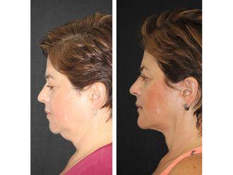 Cirugía de papada-638031
