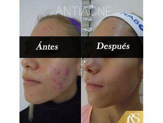 Tratamiento antiacné - 638301