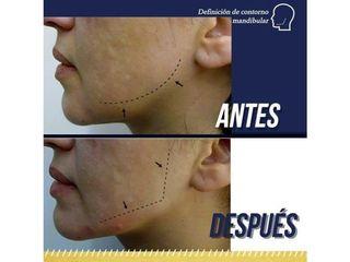 Definición del contorno mandibular