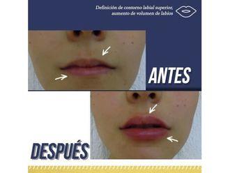 Aumento de labios-638307