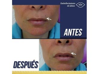 Aumento de labios-638308