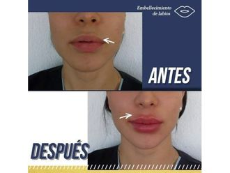Aumento de labios-638310