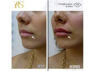 Aumento de labios-638312