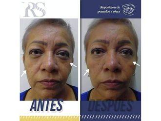 Rejuvenecimiento facial-640565