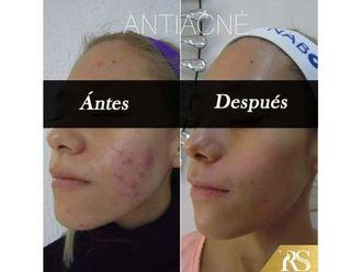 Tratamiento antiacné - 640566