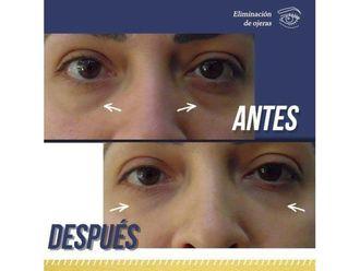 Rejuvenecimiento facial-640570