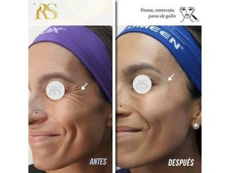 Rejuvenecimiento facial-640581