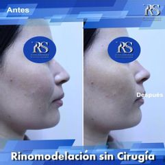 Dr. Raúl Sierra Franco - Rinomodelación