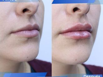 Aumento de labios-662073
