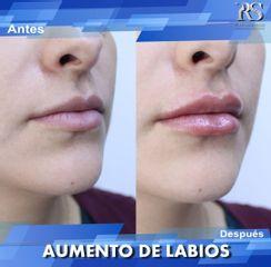 Dr. Raúl Sierra Franco - Relleno de labios