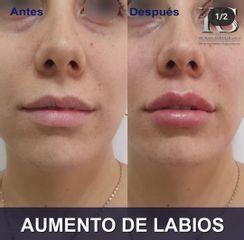 Aumento de labios - Unidad de Medicina Estética de Querétaro