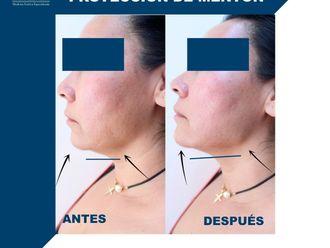 Cirugía de papada-684752
