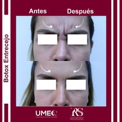 Bótox entrecejo - Unidad de Medicina Estética de Querétaro