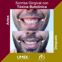 Bótox gingival - Unidad de Medicina Estética de Querétaro