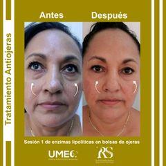 Tratamiento Antiojeras con enzimas lipolíticas - Unidad de Medicina Estética de Querétaro