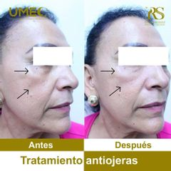 Tratamiento antiojeras - antes y después