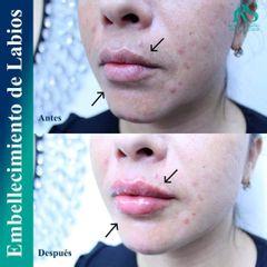 Embellecimiento de labios