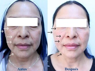 Rejuvenecimiento facial-693937