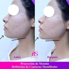 Mentoplastia - Unidad de Medicina Estética de Querétaro